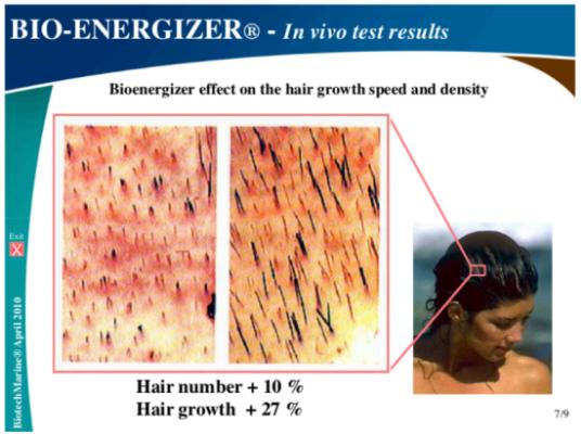 hình ảnh Dầu gội trị rụng tóc DHT Blocker FIT Hair có tốt không? Mua ở đâu chính hãng - số 2