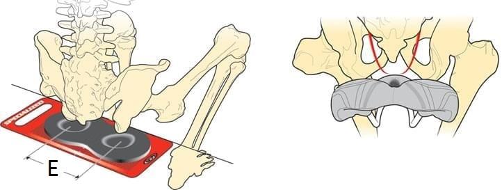 Můžete použít kus kartonu. Po vysezení dvou důlků od sedacích kostí si vyznačte jejich středy a změřte jejich vzájemnou vzdálenost.