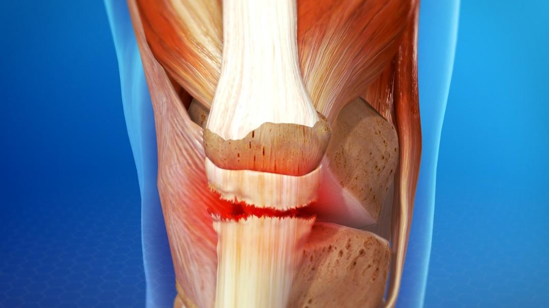 Causes & Treatment Of Patellar Tendon Tear In Knee Joint