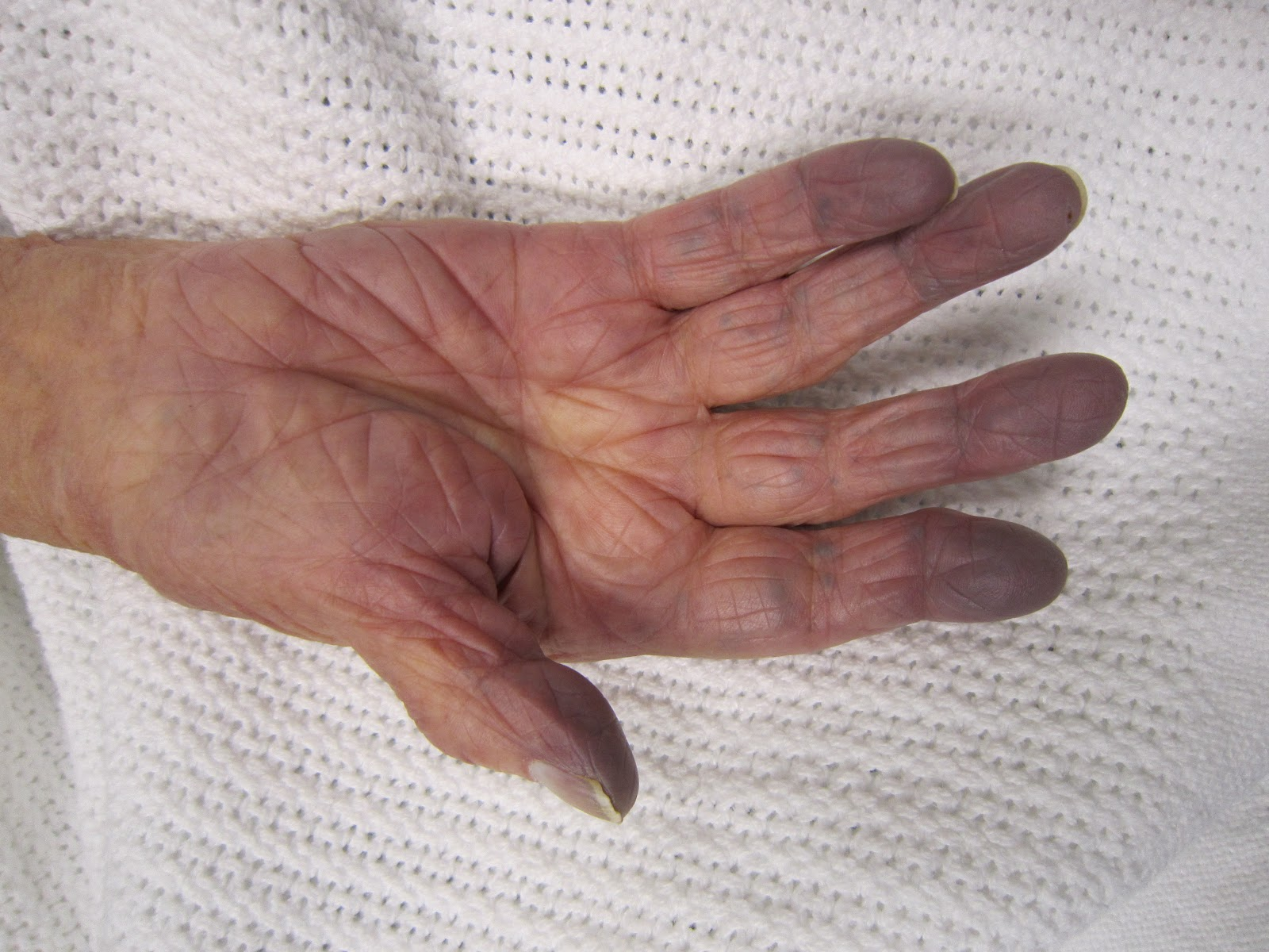 hand with bluish skin showing cyanosis