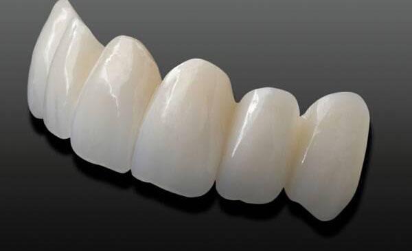 Giá trồng răng sứ vĩnh viễn bao nhiêu tiết kiệm nhất tháng 7?