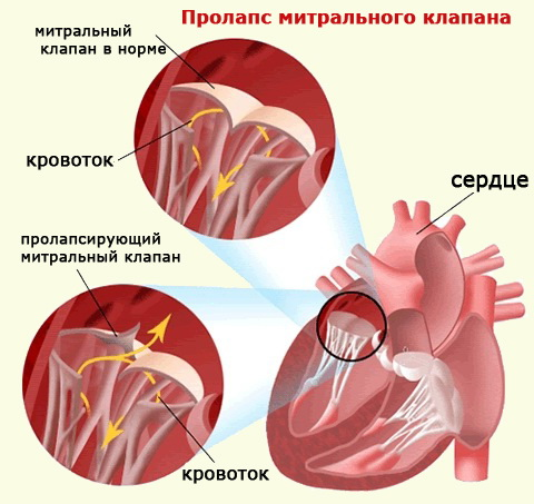 Нейтральный клапан сердца