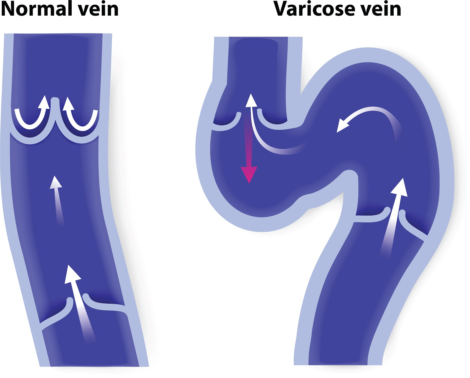Vanexxe What Are Varicose Veins