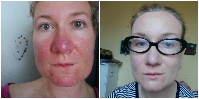 No, I don't have a sunburn. Opening up about rosacea ...