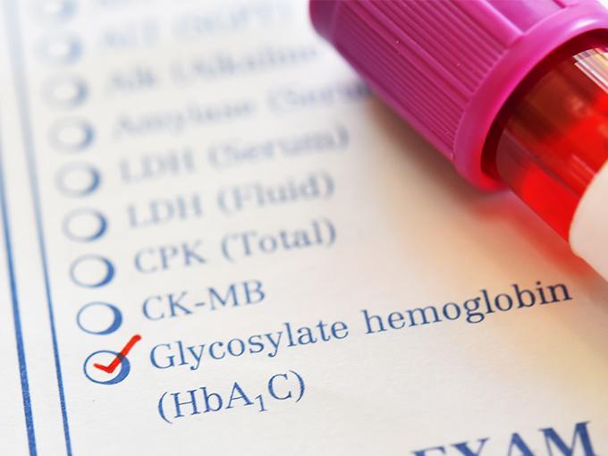 Wie schnell der Zuckerwert im Blut ansteigt, gibt Aufschluss über die Glukosetoleranz und damit über eine mögliche bestehende Diabetes-Erkrankung.