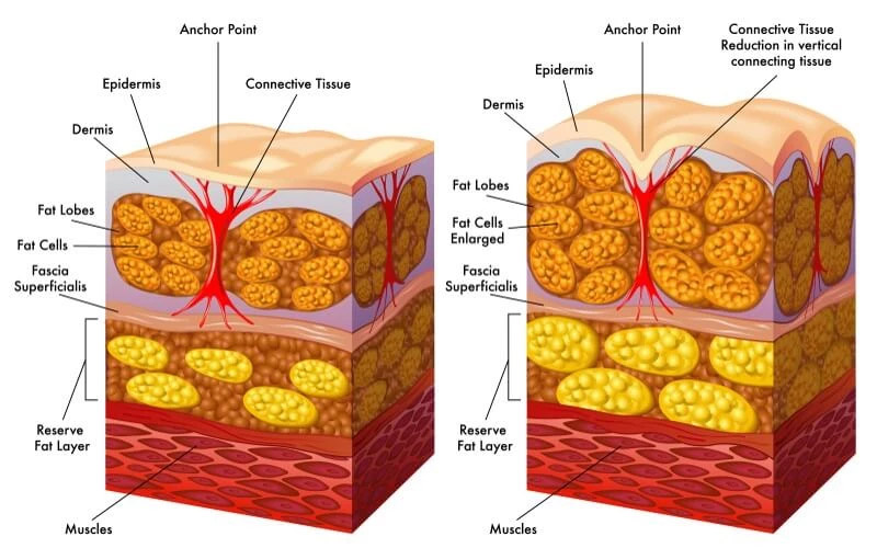 Skin layer diagram showing how cellulite forms under the skin