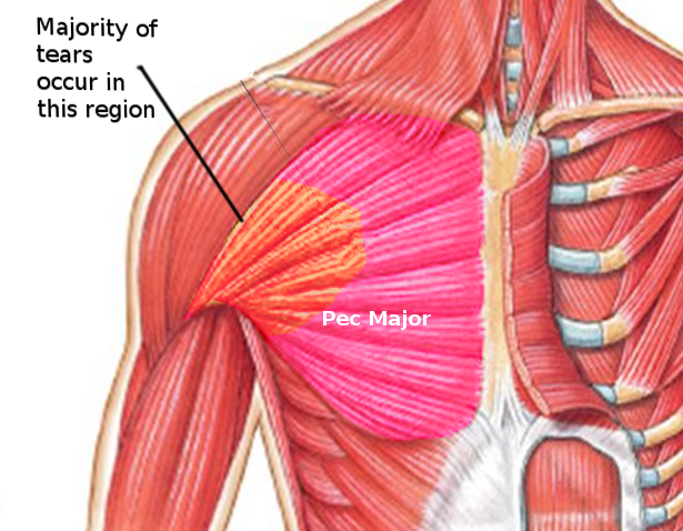 Pectoralis Major Tear Article