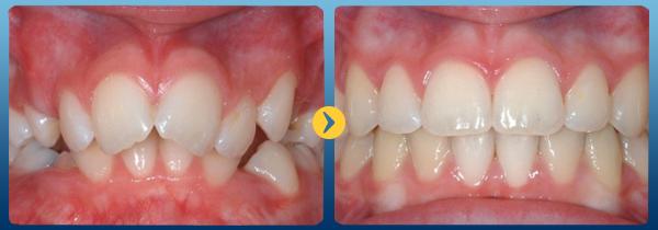 Các phương pháp niềng răng phổ biến tại nha khoa Bally 1