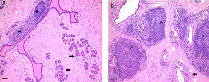 Histopathology of the mammary gland of two adult goats naturally infected with an SRLV A4 subtype. Histopathology of the mammary gland. a: representative histopathological picture of a grade 1 inflammatory reaction in goat #2 with small periductular lymphoid follicles (asterisks) and mild periacinar lymphocytic infiltrates (arrows). b: Representative histopathological picture of a grade 4 inflammatory reaction in goat #5 with many large lymphoid follicles (asterisks) and moderate lymphocytic periacinar infiltrates (arrow). H&E stain, scale bar = 100 μm. (M. Deubelbeiss et al. Characterization of small ruminant lentivirus A4 subtype isolates and assessment of their pathogenic potential in naturally infected goats. Virol J (2014); 11:65-75).