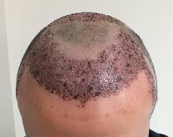 saç ekimi sonrası görüntü