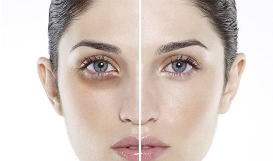 Quầng thâm vùng mắt khiến bạn trở nên mệt mỏi và thiếu sức sống