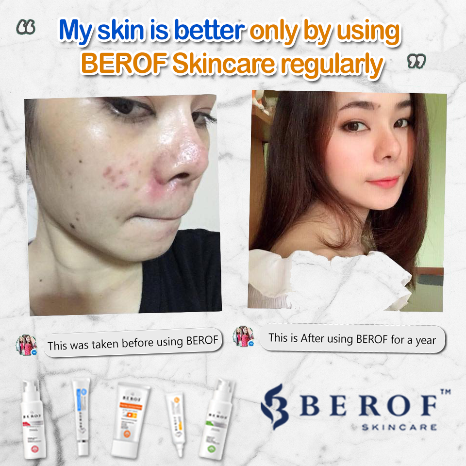 Review Acne treatment berof skincare lahore