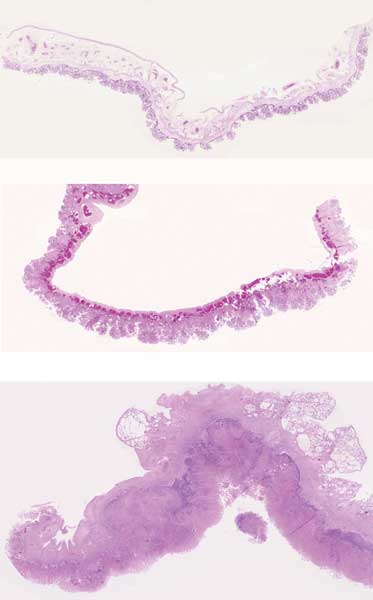 Subgross pictures of tissue sections taken from three equine placentas photographed at the same magnification.