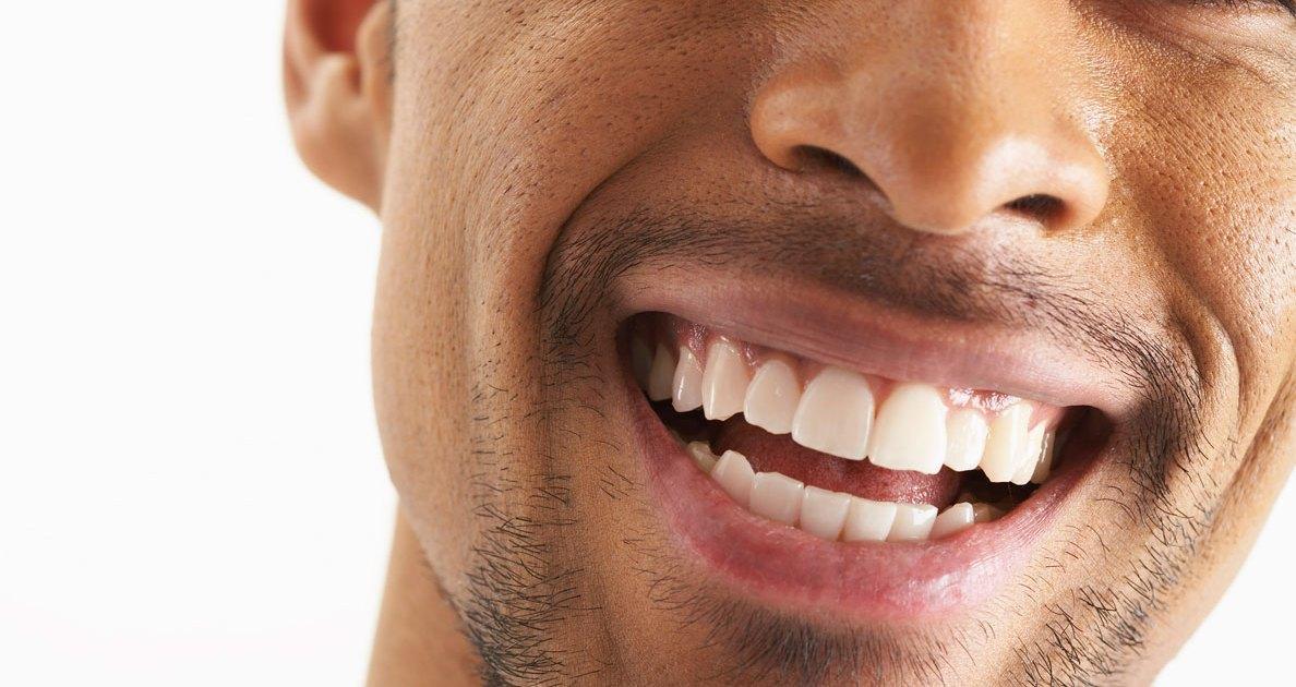 safe-ways-to-whiten-teeth-main.jpg