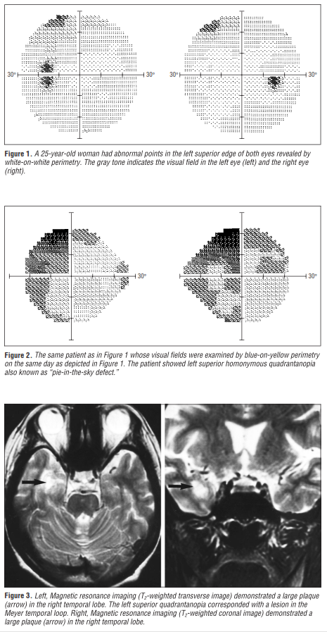 Visual Field Loss Archives - Neuro-Ophthalmology - School -4104