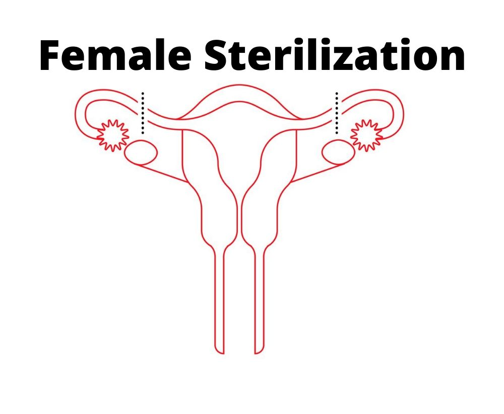 Female sterlization