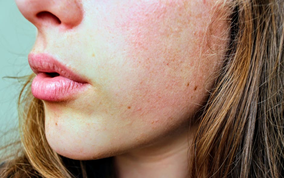 Ways To Deal With Dehydrated Skin