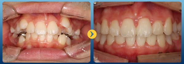 Niềng răng gián tiếp: rút ngắn thời gian lên đời nhan sắc 1