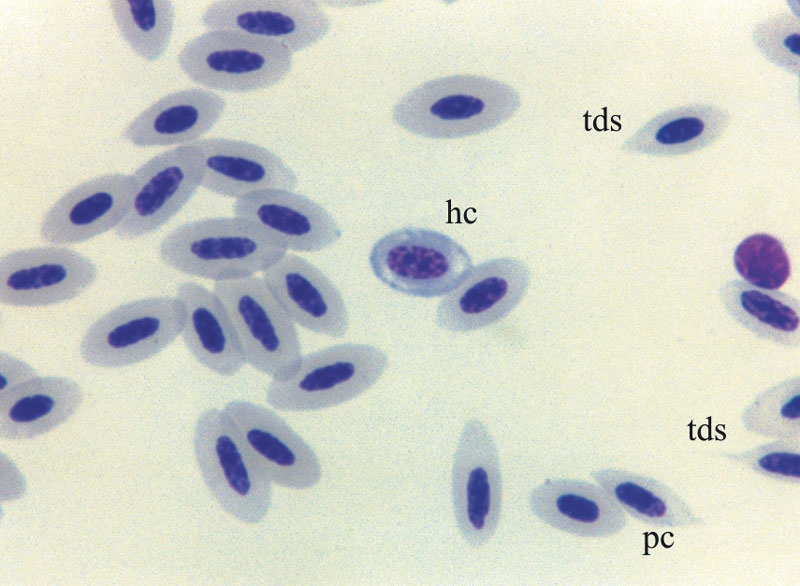 Hypochromic (hc), teardrop-shaped red cells (tds) and poikilocytes (pc) are illustrated