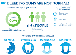 Image result for bleeding gums