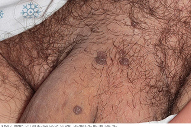 An image of HPV warts on male genitalia.