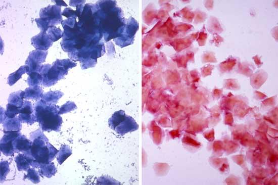 Microfotografía en menor aumento de frotis vaginales obtenidos en proestro tardío ó estro temprano, teñidos con la coloración de hematología de Wright Giemsa modificada (izquierda) ó con una tinción tricrómica (derecha)