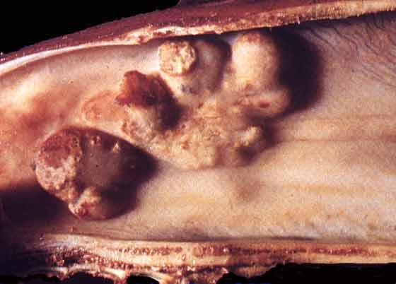 Nasal granulomata associated with conidiobolus infection. Illustration taken from Miller RI [2].