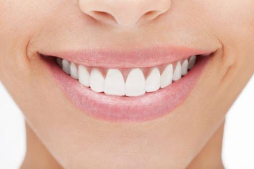 6 atitudes que garantem um sorriso bonito e saudável - Top Fase Seguros e  Benefícios