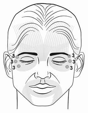 Botox Training Orbicularis Oculi Injection Pattern
