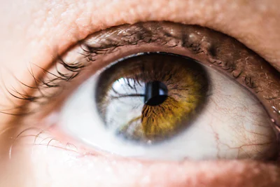 Episcleritis caused by stress(A guide)
