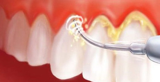 Cạo vôi răng mất bao lâu thời gian? - Nha khoa Bally