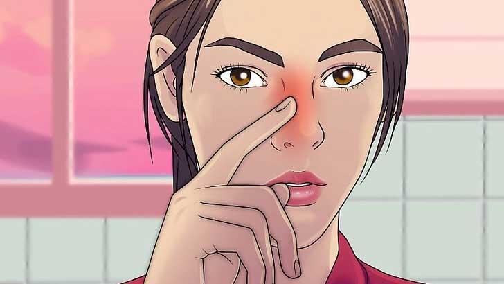 ورم بینی بعد از عمل بینی