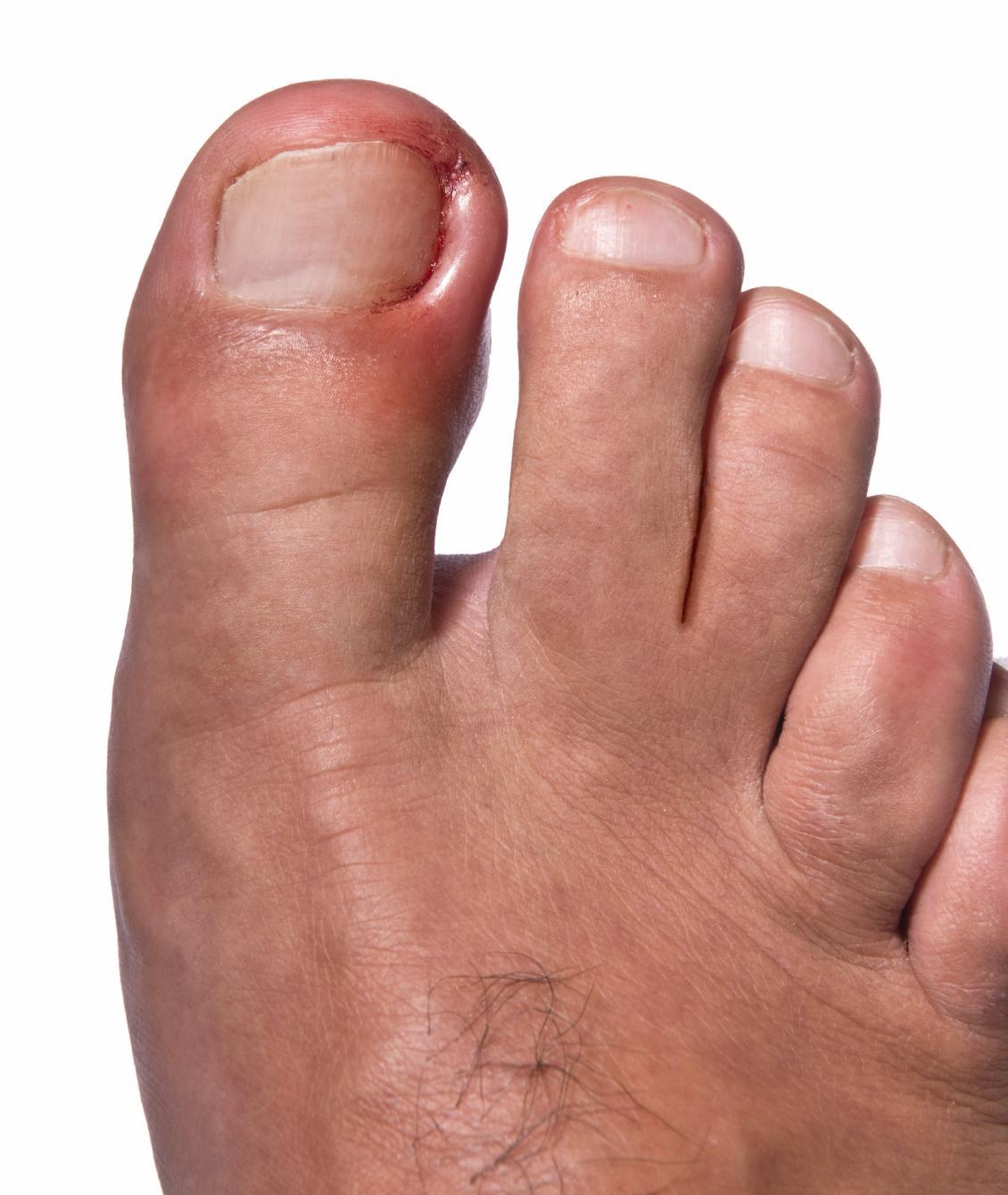 Онихогрифоз ногтей стадии и причины развития