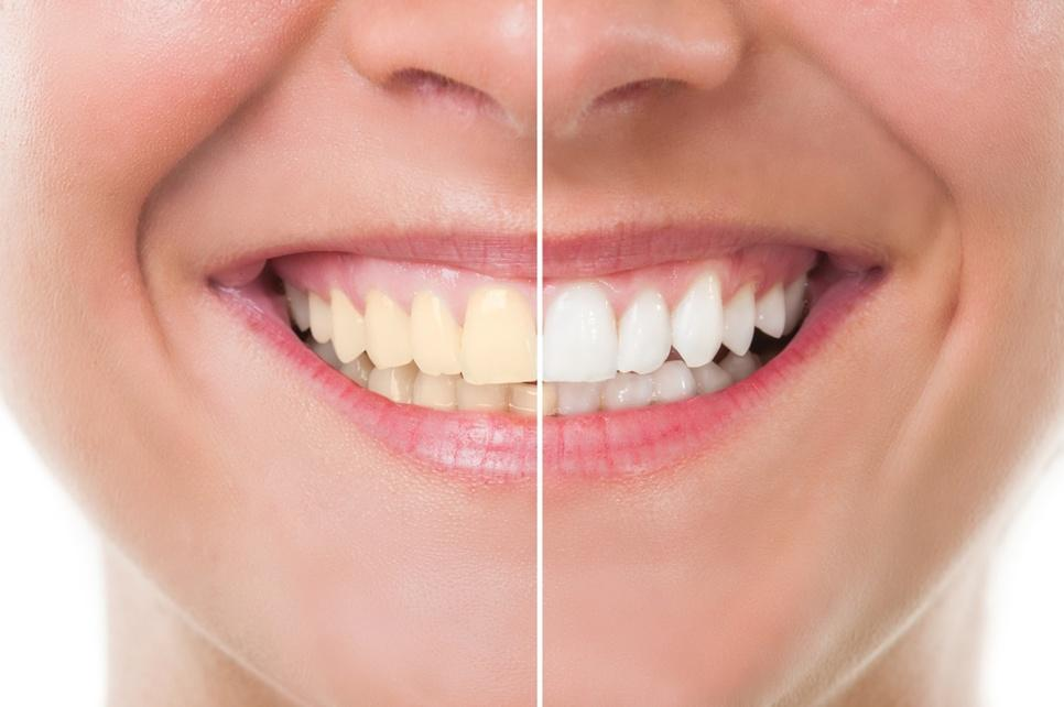 How Cosmetic Dentistry Is Helpful In Keeping Your Smile Healthy