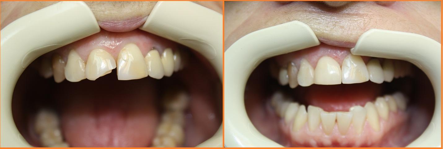 Как реставрируют коронковую часть зуба