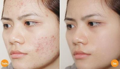 Kết quả hình ảnh cho mụn truosc và sau khi điều trị