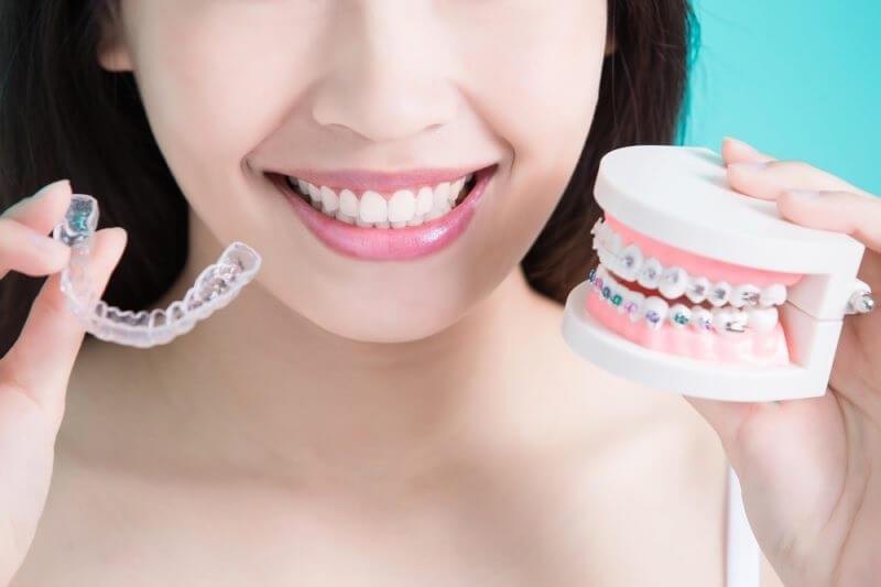 Bạn sẽ phải tạm biệt nhiều món ăn yêu thích khi niềng răng.