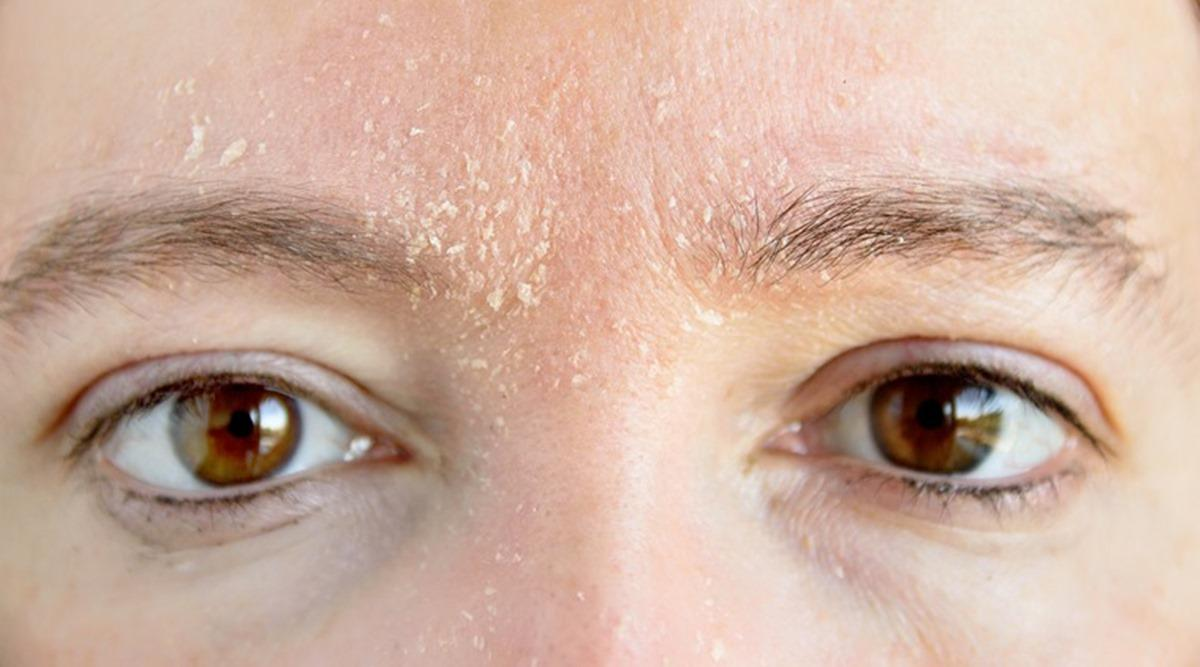 A close up of a persons eyesDescription automatically generated