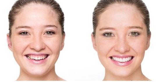 Nhận biết và điều trị cười hở lợi chính xác - Nha khoa Bally 1