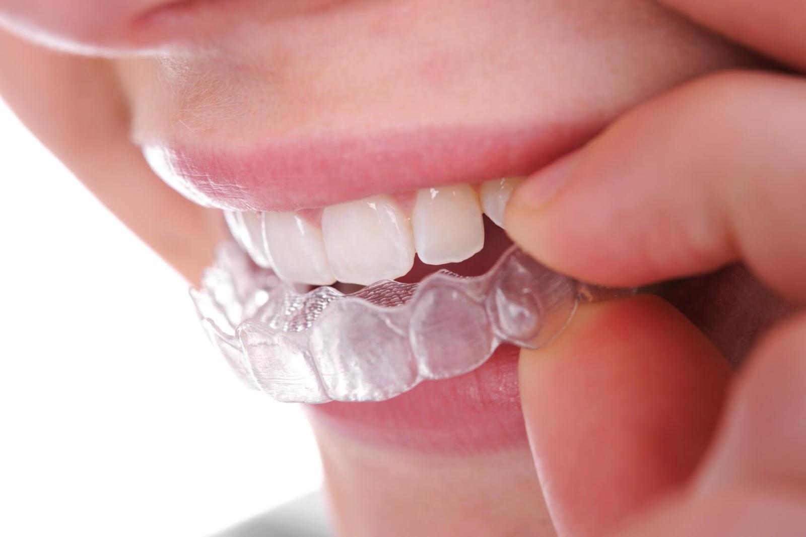 Ưu nhược điểm phương pháp niềng răng không mắc cài