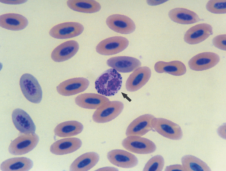 In this eosinophil (arrow), note the numerous small and medium-sized, dark purple-colored granules located mainly in the periphery of the cytoplasm