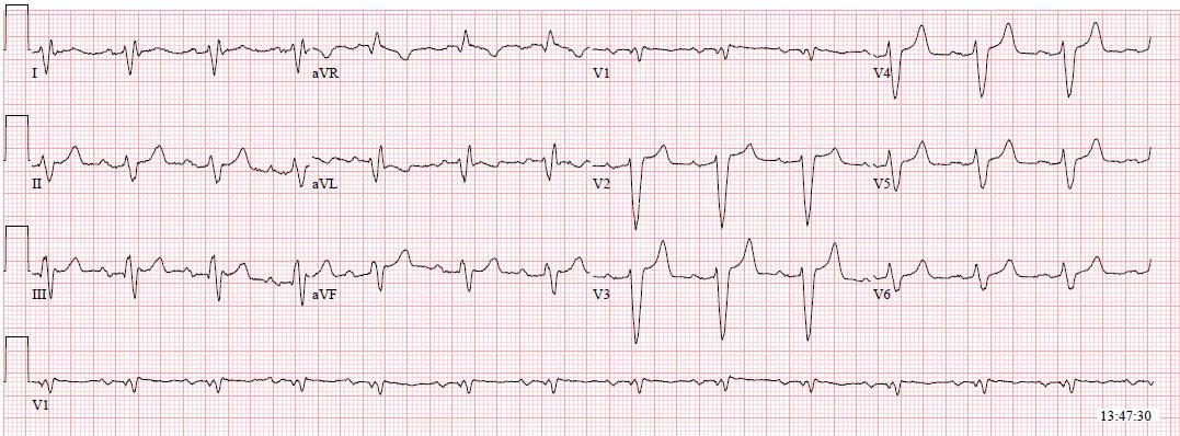 Hyperkalemia widened QRS with minimal peaked T waves