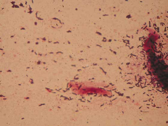 Eolophus roseicapillus