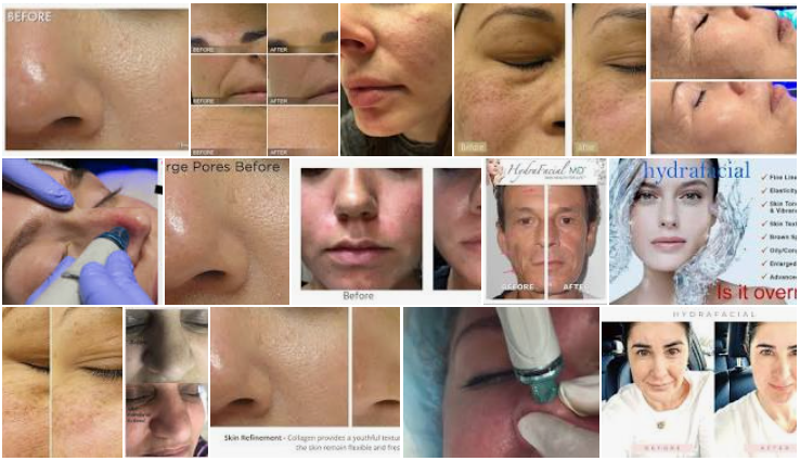 Hydrafacial Before and After Pores