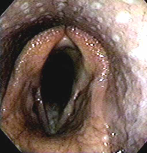 Pharyngeal grade I: only a few small whitish follicles are seen over the dorsal walls of the nasopharynx. This is the normal status.