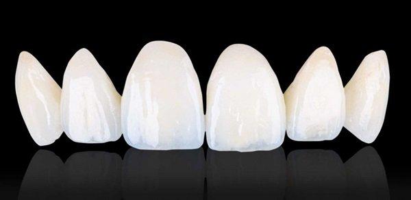 Bọc răng sứ giá bao nhiêu tiền năm [ 2018 ] ? - Nha Khoa Bally
