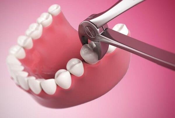 Điều trị các bệnh về nha chu, sưng chân răng, sưng nướu răng 1