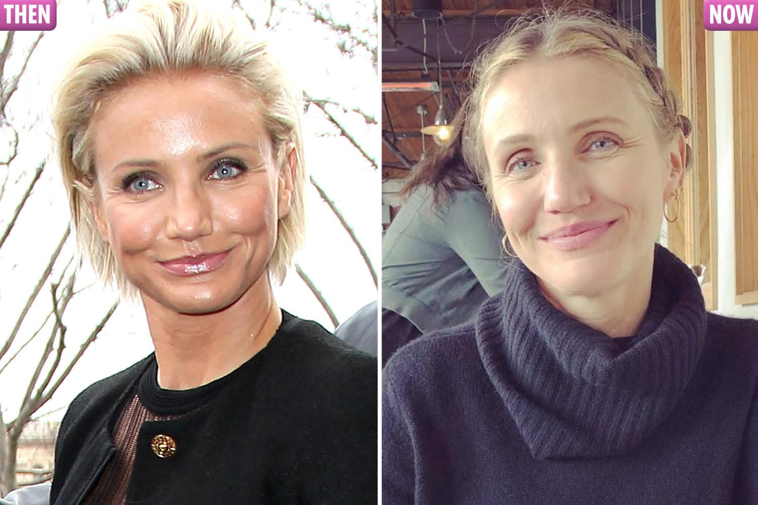 Cameron Diaz has banished her Botox look on the left admitted she's happy with her laughter lines