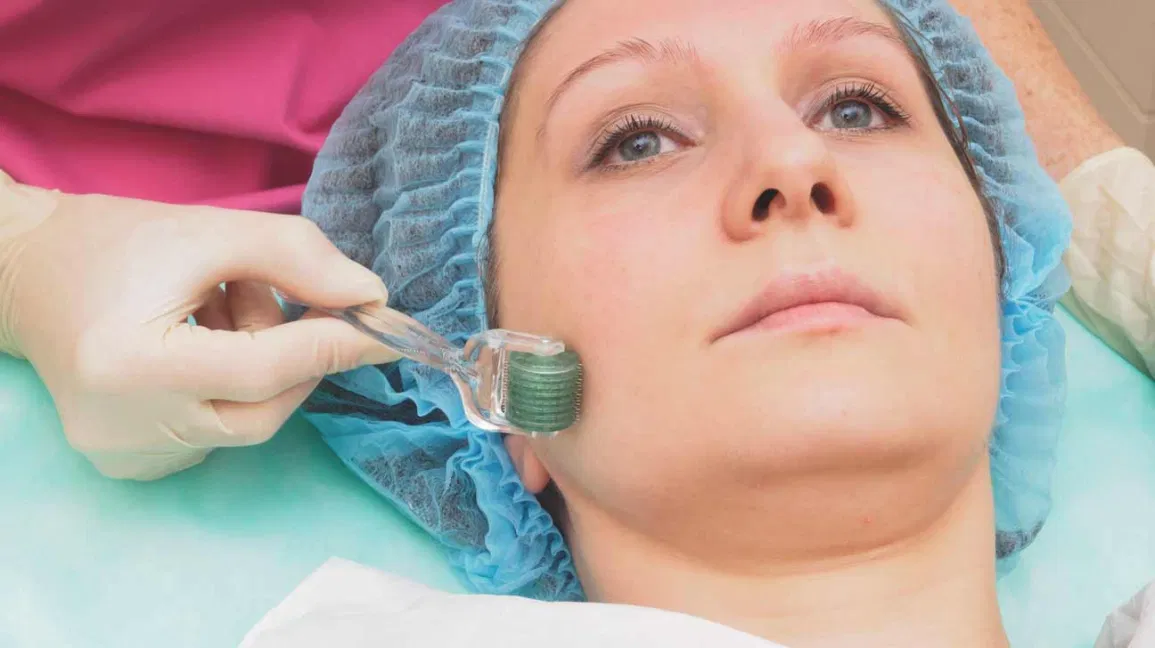 Frequently Asked Questions About Microneedling