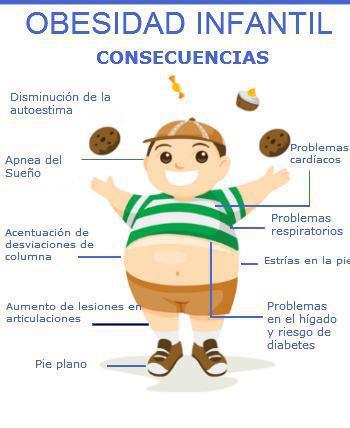 obesidad infantil.jpg